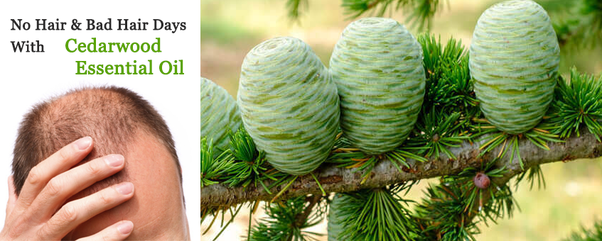 End Your No Hair & Bad Hair Days With Cedarwood Essential Oil
